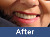 dental-prosthetics-after