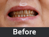dental-prosthetics-before